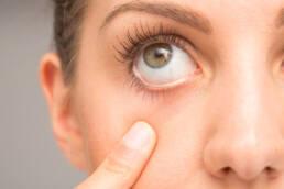 درمان خشکی چشم | اختلال عملکرد غدد چربی لبه پلک